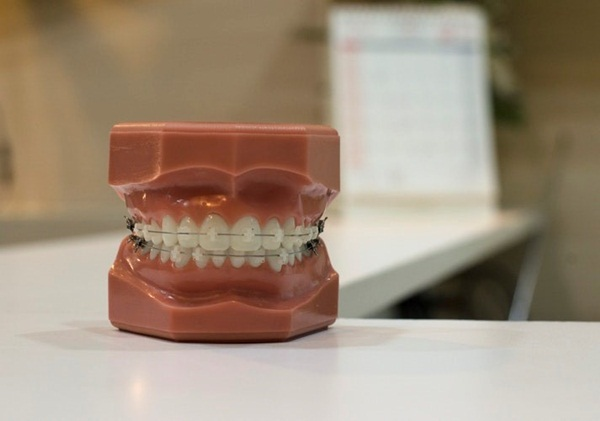 Mô hình răng sử dụng niềng răng mắc cài sứ