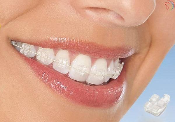 Một số yếu tố khác ảnh hưởng đến chi phí niềng răng mắc cài sứ