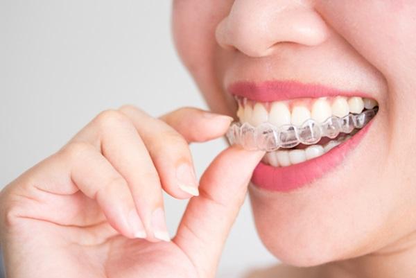 Niềng răng không mắc cài trong suốt là gì?