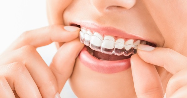 Niềng răng không mắc cài trong suốt mang đến nhiều lợi ích cho người điều trị