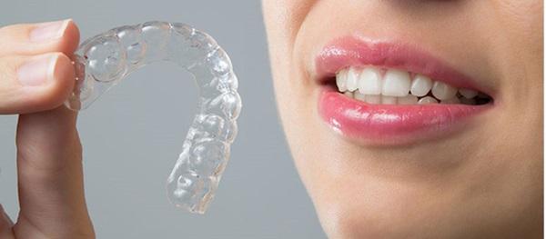 Platinum Dental Group - địa chỉ niềng răng không mắc cài trong suốt uy tín hàng đầu
