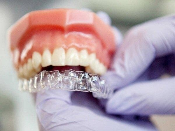 Niềng răng trong suốt và những điều bạn cần biết khi có nhu cầu thực hiện
