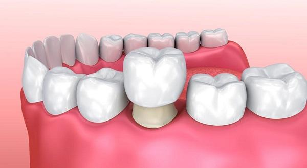 Bọc răng sứ trực tiếp