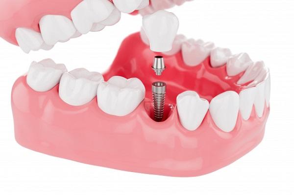 Bọc răng sứ trên chân răng nhân tạo
