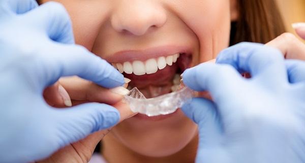 Niềng răng invisalign được nhiều người lựa chọn
