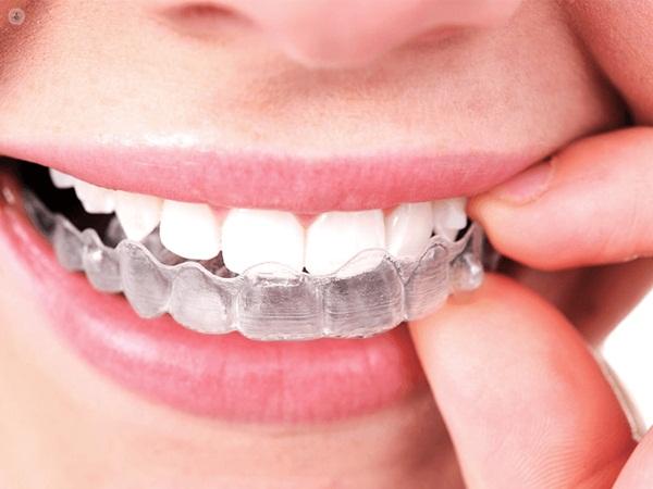 Bên cạnh những ưu điểm, niềng răng invisalign cũng có nhược điểm riêng