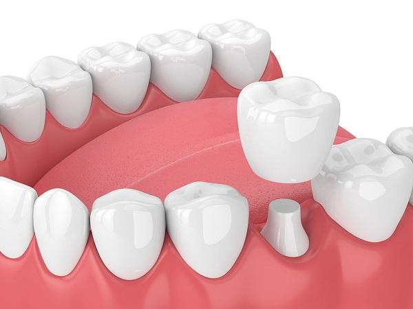 Bọc răng sứ giá có đắt như bạn nghĩ?