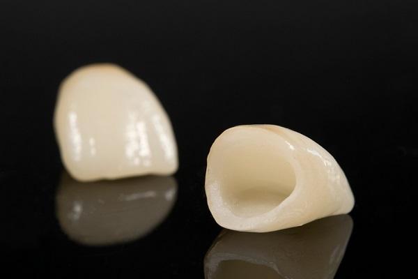 Răng toàn sứ ngày càng được ưa chuộng bởi tính thẩm mỹ cao