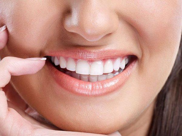 Nụ cười tự tin khi tin tưởng làm răng uy tín tại TPHCM