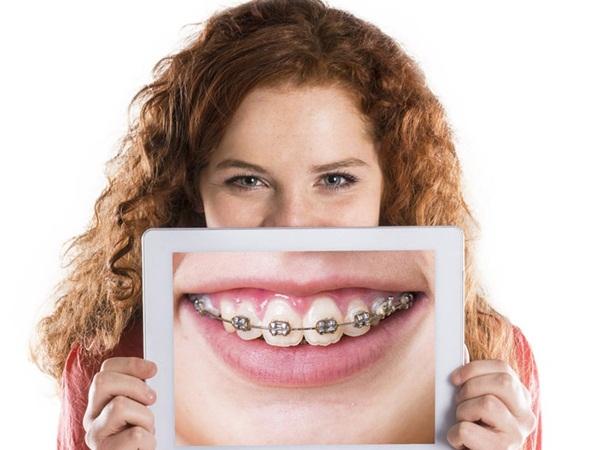 Ở mức độ nhẹ thì niềng răng hô không quá tốn kém
