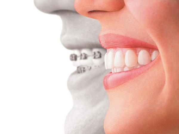 Răng hô khiến nhiều người mất tự tin