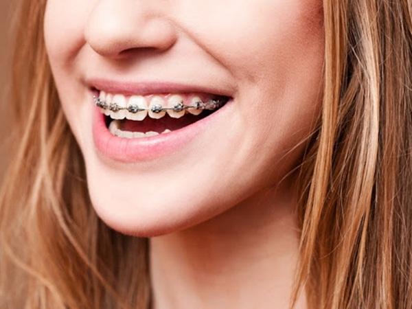 Niềng răng hô không mất quá nhiều thời gian