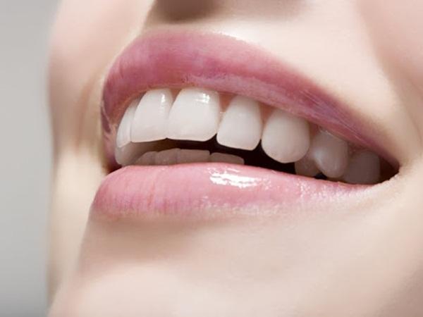 Niềng răng hô giá rẻ uy tín tại TpHCM