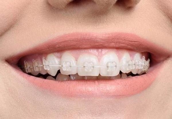 Niềng răng mắc cài sứ truyền thống