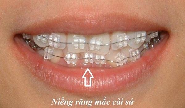 Niềng răng mắc cài sứ thẩm mỹ, hiệu quả ở đâu?