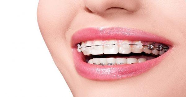 Sở hữu hàm răng đẹp nhờ niềng răng thẩm mỹ