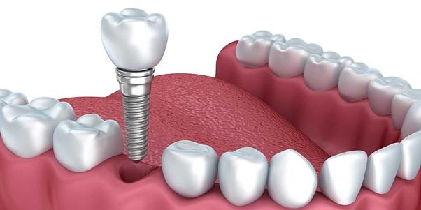 Các bước thực hiện trồng răng implant hiệu quả