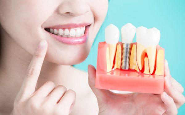 Tìm kiếm địa chỉ trồng răng uy tín tại TPHCM