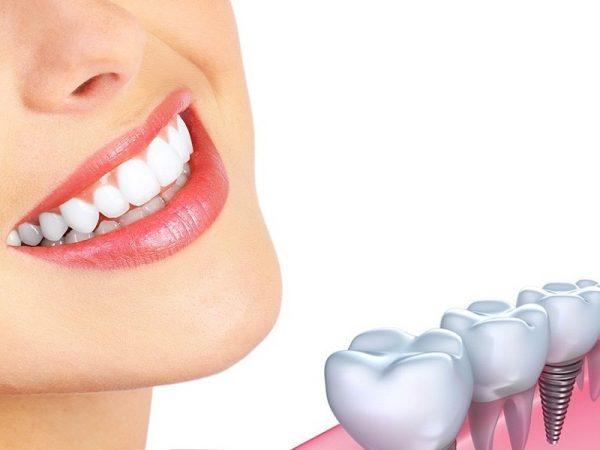 Sau khi tiến hành trồng răng, hãy lưu ý làm theo các nguyên tắc sau đây để đảm bảo sức khỏe