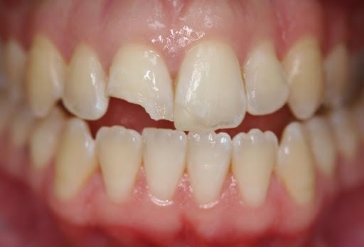 Răng mẻ nên trồng sứ