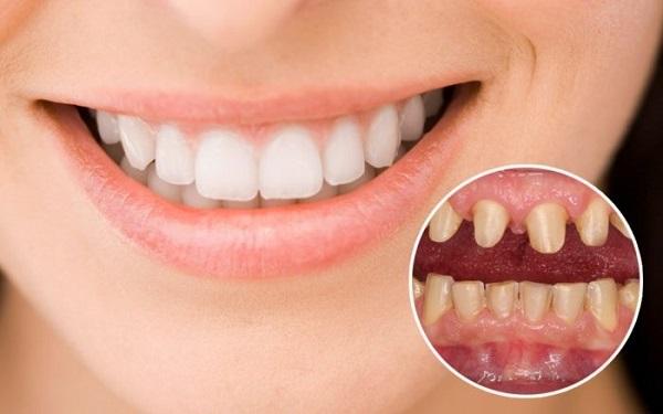 Những ưu điểm vượt trội của bọc răng sứ thẩm mỹ.