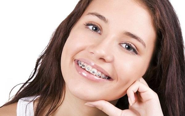 Khắc phục niềng răng bị hóp má như thế nào?