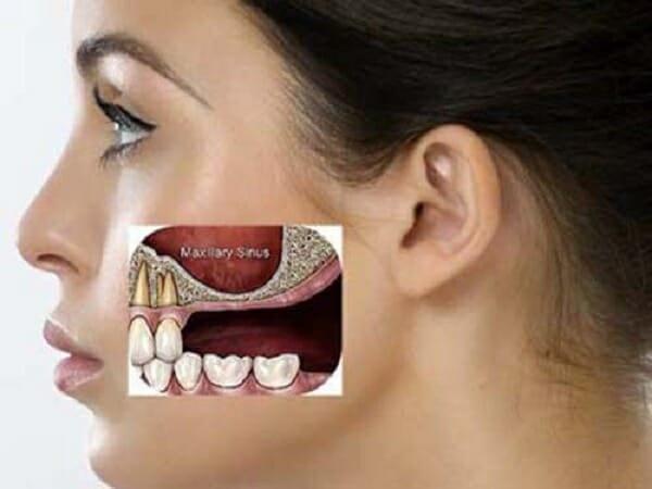 Tìm ra nguyên nhân để khắc phục niềng răng bị hóp má