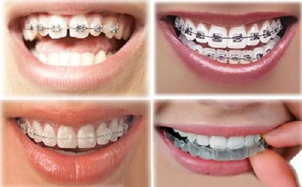 Lựa chọn phương pháp chỉnh nha phù hợp để khắc phục niềng răng bị hóp má