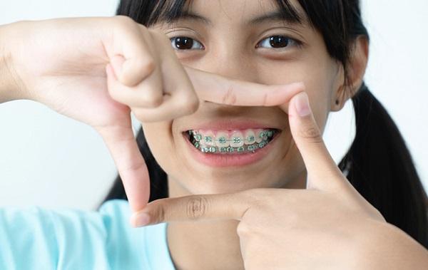 Biện pháp khắc phục niềng răng bị hóp má là gì?
