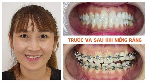 Vệ sinh răng miệng thật tốt để đảm bảo niềng răng móm tốt nhất