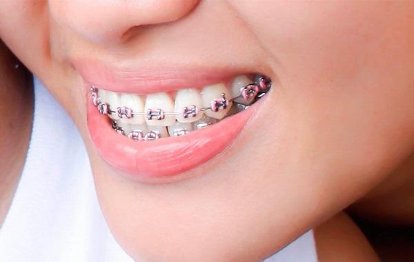 Có những phương pháp niềng răng bị móm như thế nào