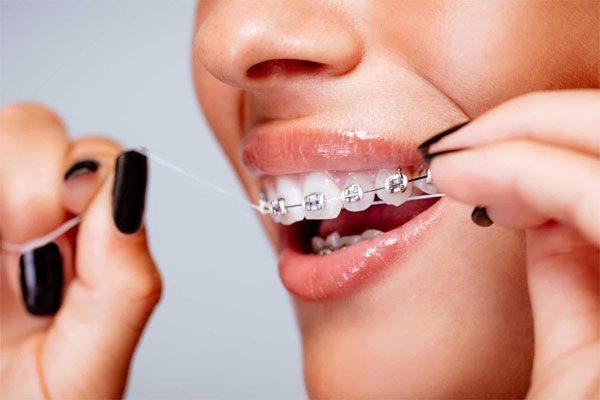 Niềng răng bị móm giúp làm giảm hô, lệch, móm,..