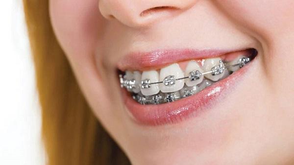 Nâng cấp răng miệng đều đặn đẹp mắt nhờ niềng răng