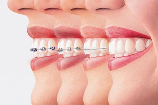 Quá trình niềng răng