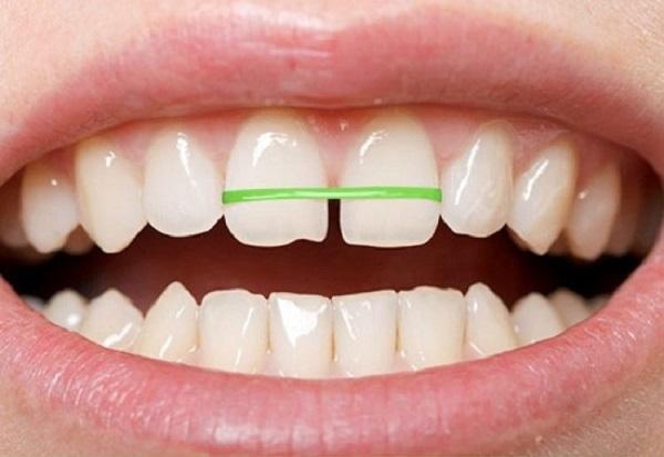 Niềng răng bằng dây thun
