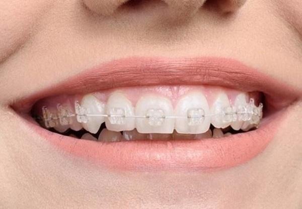 Vệ sinh răng miệng tốt để hàm răng sau niềng trở nên hoàn hảo