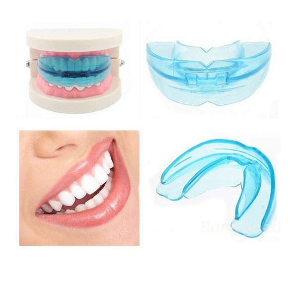 Bộ niềng răng tại nhà