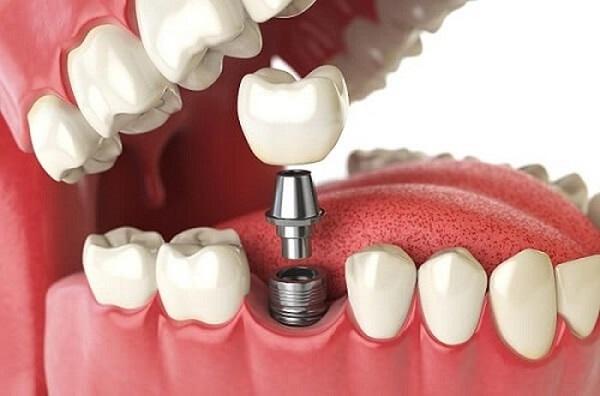 Có những phương pháp trồng răng giả nào?