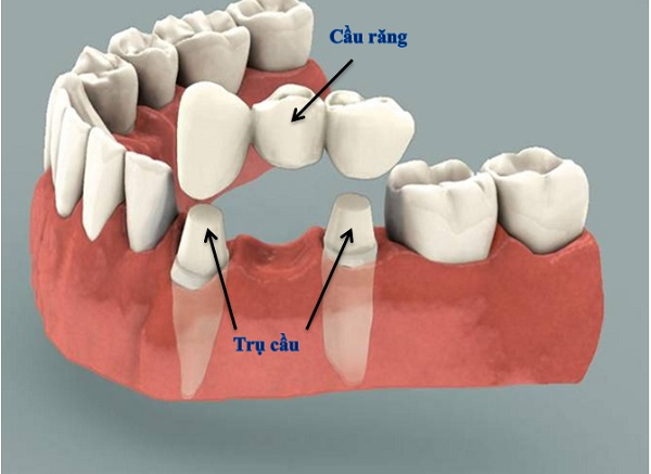 Phương pháp trồng răng hàm tốt