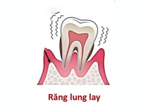 Những cách làm răng lung lay nhanh chóng tại nhà