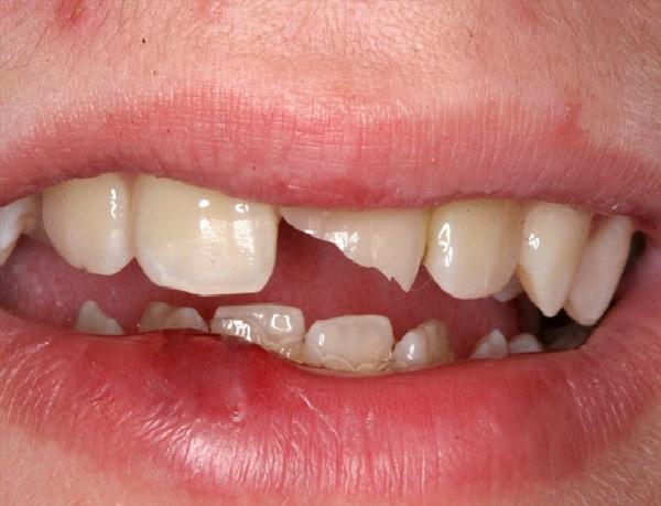 Răng chịu sự va đập