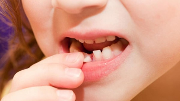 Quá trình thay răng sữa của bé