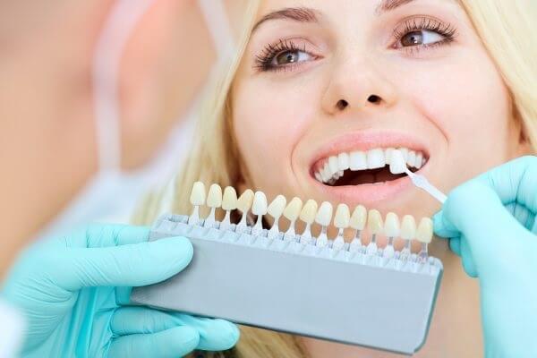 Giá răng sứ Veneer hiện nay là bao nhiêu?