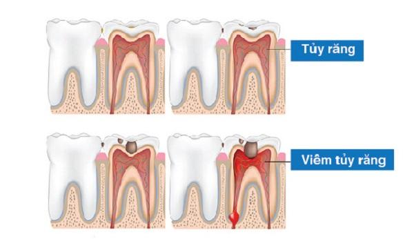 Hình ảnh tủy của răng bị viêm