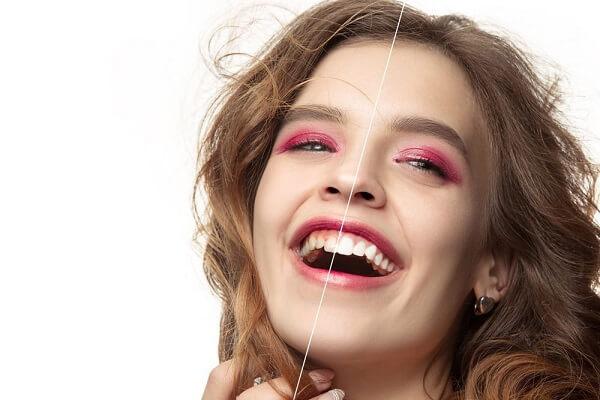 Kinh nghiệm làm răng Veneer là gì?