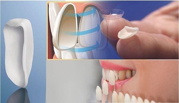 Kinh nghiệm làm răng Veneer cần xác định loại sứ phù hợp