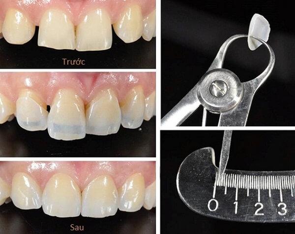Kinh nghiệm làm răng Veneer cần tìm phòng khám nha khoa uy tín