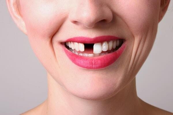 Phương pháp làm răng cửa tốt nhất hiện nay là gì?