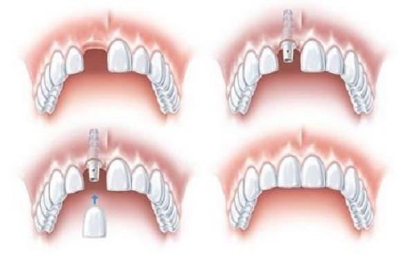 Đặc điểm của răng Implant