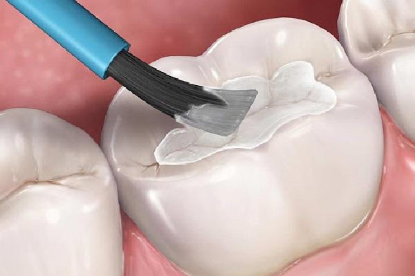 Phương pháp trám răng thẩm mỹ